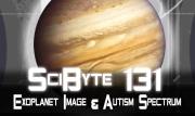 Exoplanet Image & Autism Spectrum | SciByte 131